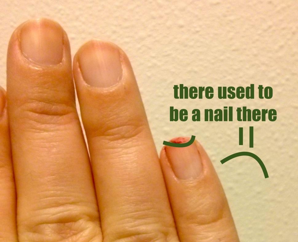 fingernail_off